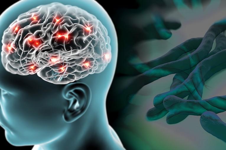 Каква е връзката между стомашно-чревния тракт и болестта на Паркинсон (1)
