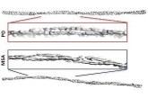 Разработва се метод за различаване на болестта на Паркинсон от мултисистемната атрофия