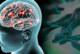 Най-честите въпроси, свързани с COVID-19 при пациентите с болест на Паркинсон