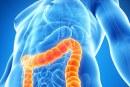 Роля на терапията с анти-TNF агенти в превенцията на Паркинсон при пациенти с IBD